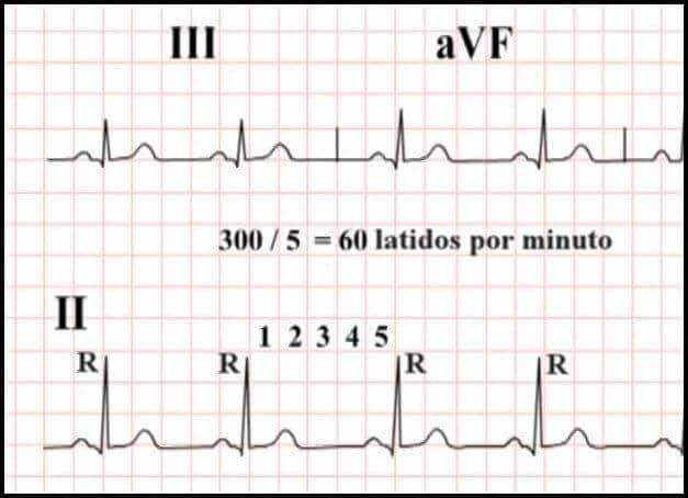 EKG de 60 lpm